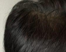 バブル期、再来なるか!?という時に仕事、干されましたが、毛髪は増えました。